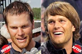 best hairtransplant in the world tom brady inspired my hair transplant new york post