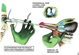 green light laser prostate surgery cost alpha blockers in treatment of bph cost laser prostate operation