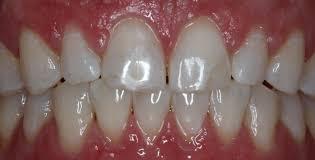 zoom whitening fitchburg ma teeth whitening brighten teeth