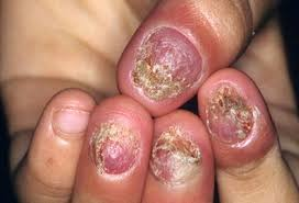 fingernail and toenail abnormalities nail the diagnosis