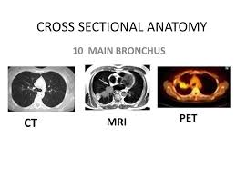 Mri Sectional Anatomy Cross Sectional Anatomy Ppt Video Online Download