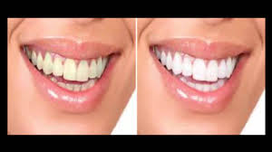 Cost Of Teeth Whitening Professional Teeth Whitening Before And After Youtube