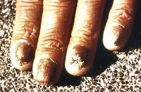 Chemical Makeup Of Hair Skin And Nails