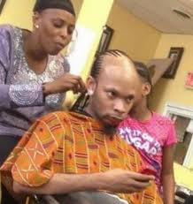 tyga hair transplant stress poor nutrition causes baldness in middle aged men