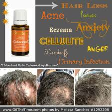 young living cedarwood for hair loss essential oil info at www