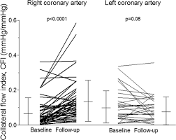 effect of permanent right internal mammary artery closure on