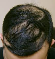 19 year old men hair styles before and after pictures hlcc uk