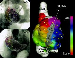 cardiac three dimensional magnetic resonance imaging and