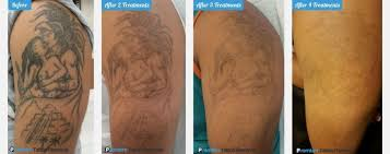 before and after laser tattoo removal process pictures to pin on