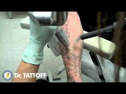 tattoo removal half sleeve laser tattoo removal at dr tattoff