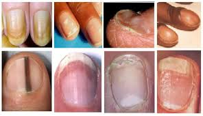 what fingernail abnormalities say about your health health