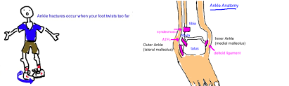 Anterior Distal Tibiofibular Ligament Broken Ankle Distal Fibula Fracture U2014 Bone Talks