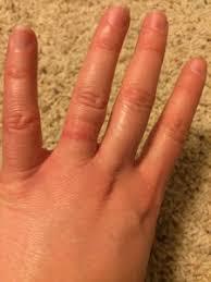 wedding ring dermatitis white gold wedding ring rash 100 images rash wedding ring