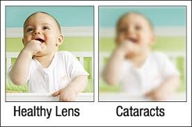 Can Cataracts Lead To Blindness Cataracts Center