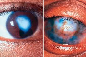Night Blindness Caused By Vitamin A Deficiency Community Eye Health Journal Prevention Of Childhood Blindness