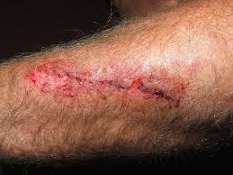 is my wound infected pus and other signs to for