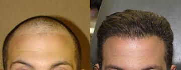fue haircuts hair transplantation before after smart hair transplant