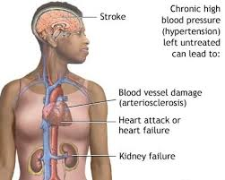 Can Stroke Cause Blindness A Natural Way To Reduce High Blood Pressure