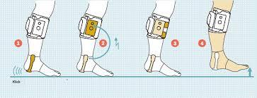 fußheberschwäche ursache neuheit my gait das stimulationssystem bei fußheberschwäche