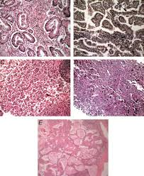 lepidic pattern meaning does lung adenocarcinoma subtype predict patient survival a