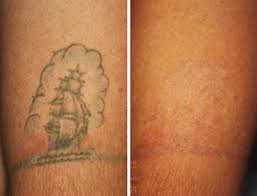 best laser for tattoo removal expectations for laser tattoo