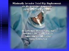 surgical table for anterior hip replacement total hip replacement surgery naples hip pain fort myers