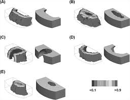 porous biodegradable lumbar interbody fusion cage design and