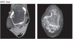 Ankle Ligament Tear Mri Lateral Ligament Injury Ankle Radiology Key