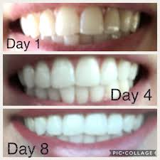 Cost Of Teeth Whitening Ap 24 Whitening Fluoride Toothpaste Reviews