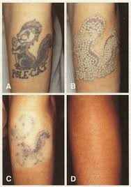 laser tattoo removal yes you actually out your tattoo