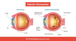 How Does Diabetes Cause Blindness Glaucoma And Diabetes Can Diabetes Affect Your Eyes