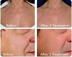 light treatment for skin e light ipl rf treatments diderma skin beauty clinic