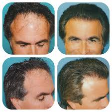 fut hong kong hair transplant grade 5 hair loss 3500 grafts using fut harvesting with
