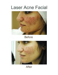 Face Mapping Acne Before And After Photo Results From A Laser Acne Done At Ah