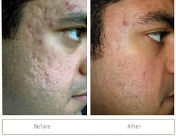 Blu U Before And After Acne Treatment Before And After Healing Plaza Info