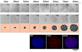 3d matrix based cell cultures automated analysis of tumor cell