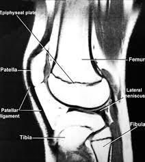 Radiology Anatomy Knee Mri Epiphyseal Plate Radiology Anatomy Images