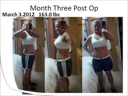 stephanie u0027s gastric sleeve before and after photo sideshow montage