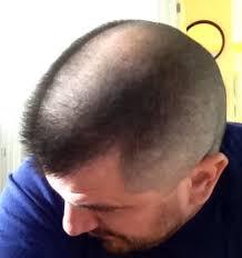 horseshoe haircut m14 forum question for active duty leathernecks