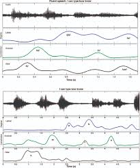 characterizing articulation in apraxic speech using real time