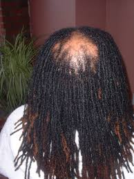 stages of dreadlocks pictures save those broken locs for a rainy day rasa salon