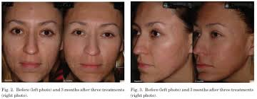 how much does acne laser scar removal cost how to get rid of