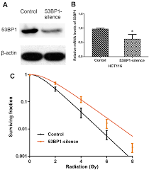 deficiency of 53bp1 inhibits the radiosensitivity of colorectal cancer