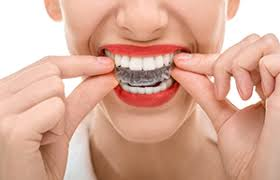 Comfort Dental Gahanna Ohio Invisalign Orthodontics Gahanna Columbus New Albany