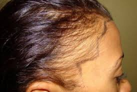 hair styles for trichotellamania receding hairline in women young black causes and how to hide