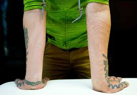 scars some people will pay for scarification as tattoo