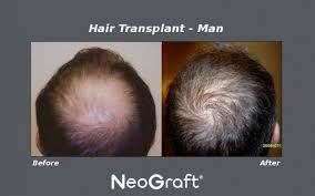 neograft recovery timeline neograft vs artas hair transplant what is the difference dr ganchi