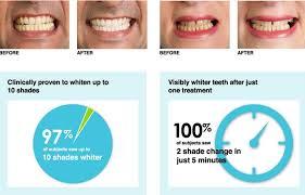 teeth whitening kit with led light aliexpress com buy ionic white teeth whitening kit ion teeth