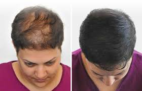 pics of scalp micropigmentation on people with long hair scalp micropigmentation for women scalp guru