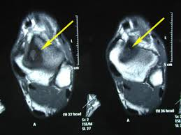 Ankle Ligament Tear Mri Talar Dome Lesion Craig A Wilkes Dpm
